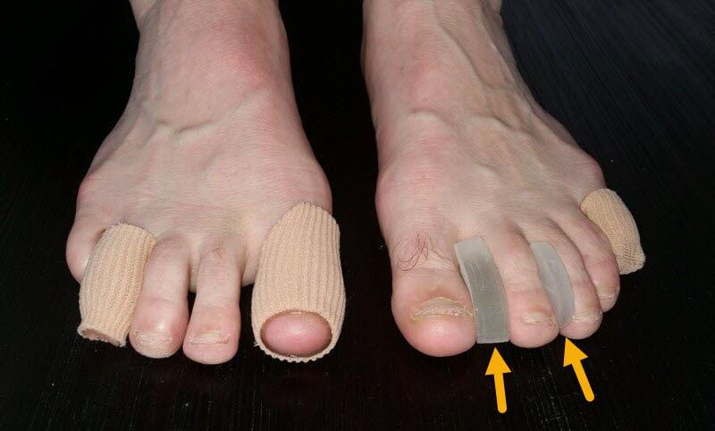 gel toe protectors for toe blisters, including blisters between toes