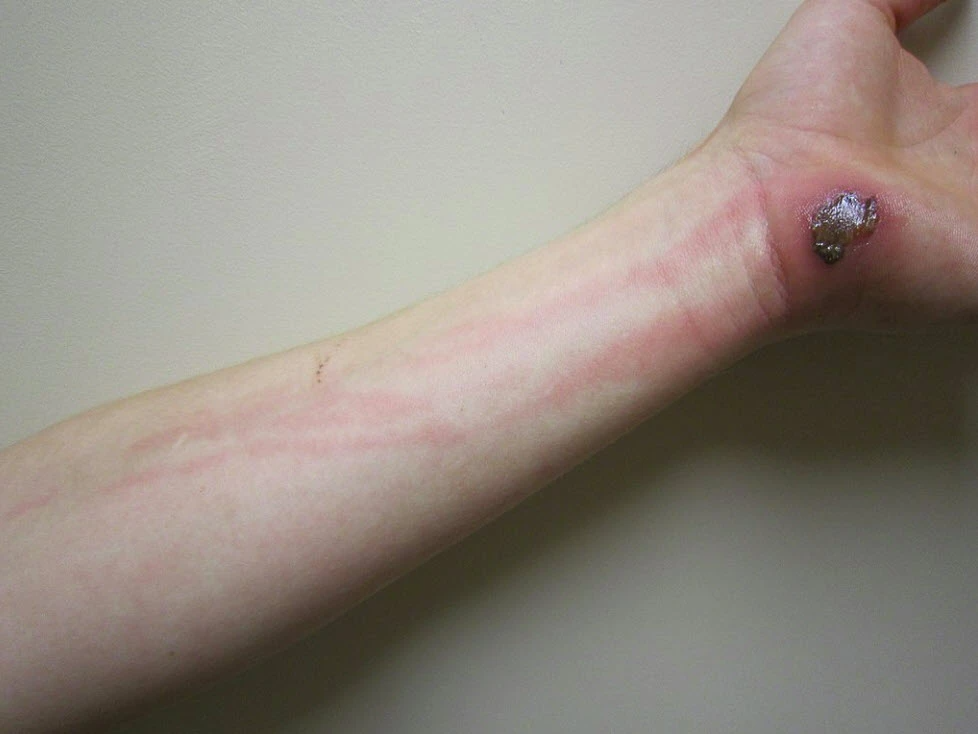 Infected blister can lead to lymphangitis