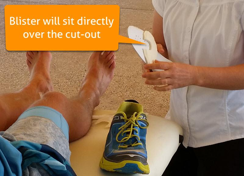 Where to position your modified donut pad blister cut-out