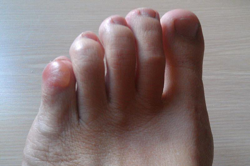 painful pinky toe blister