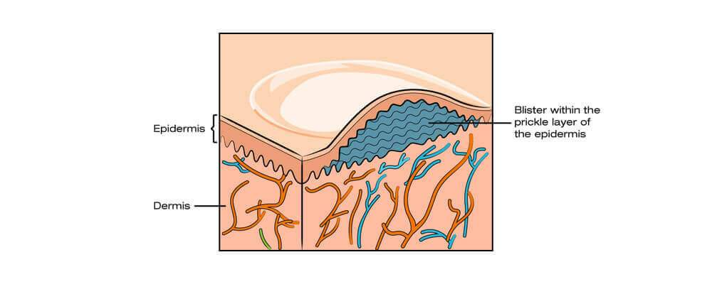 blister skin layers
