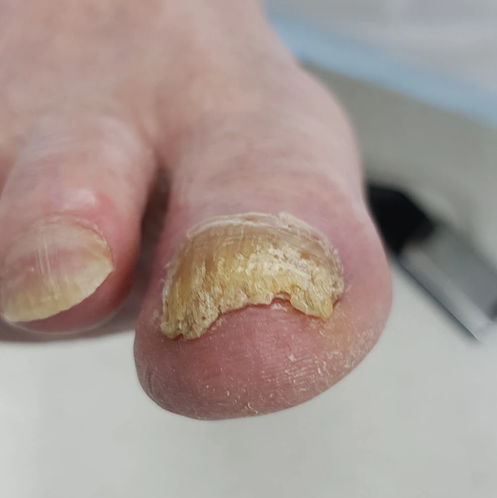thick toenail with fungal infection before trimming