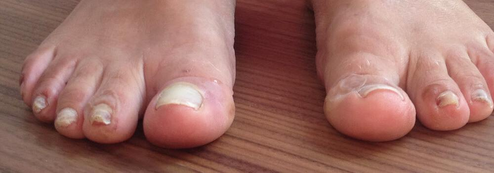 The middle 3 toenails of the right foot are too long, thick and rough. Keep them as thin and short and smooth as possible to avoid toenail blisters.