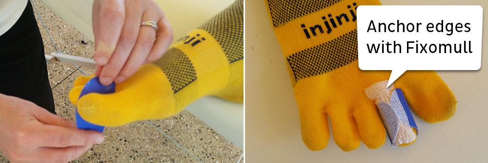 toesocks with engo patch and fixomull fastening to achor edges