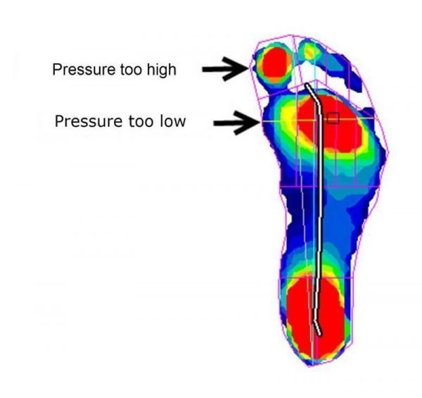 A functional hallux limitus puts more pressure under the big toe. Orthotics can change this.