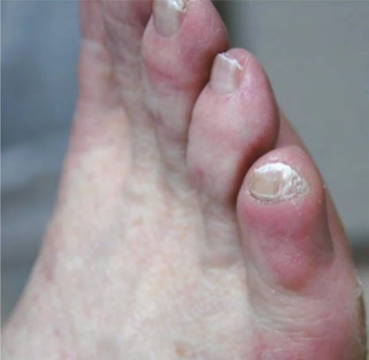 Thick little toenail with varus twist
