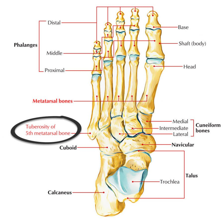 Styloid process blisters occur at the tuberosity of the 5th metatarsal