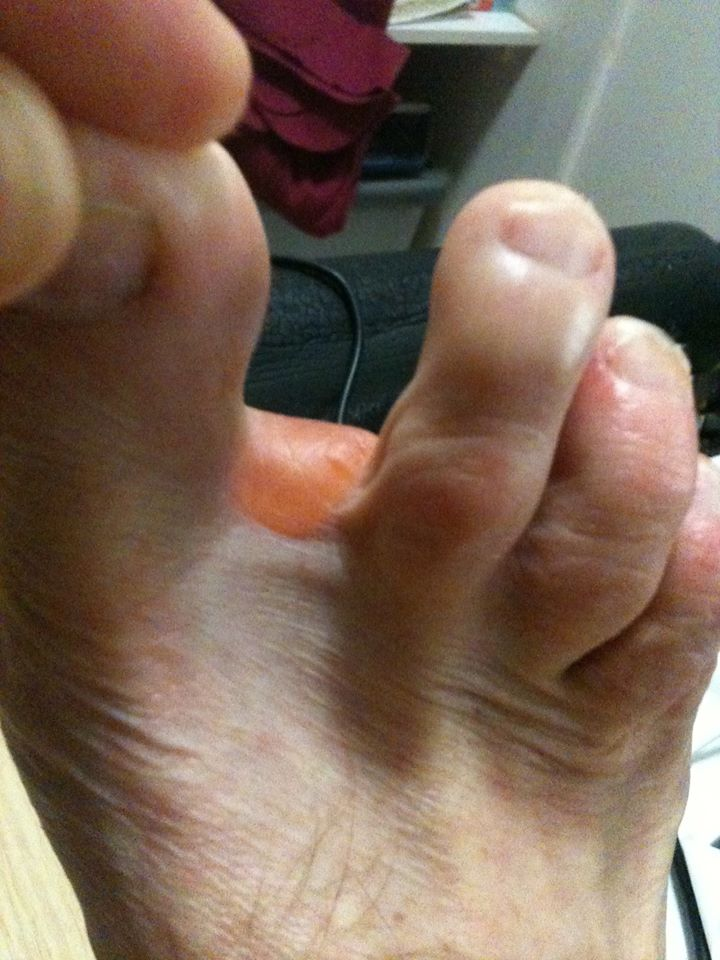 Another distal forefoot blister coming up between the toes