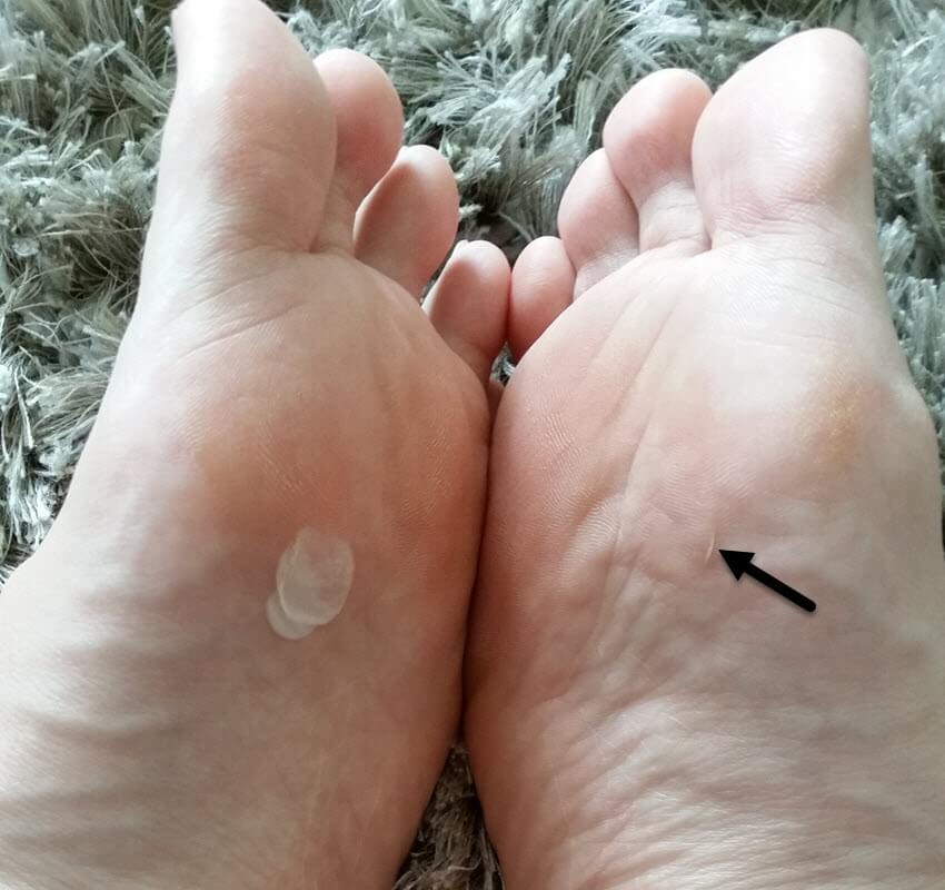 this is 30 days after initial blister injury