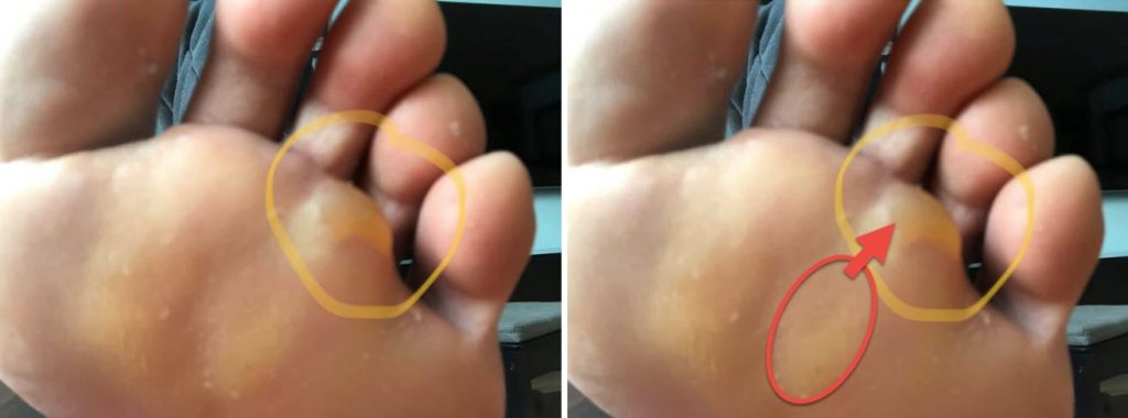 Distal Forefoot Blisters - cause versus location