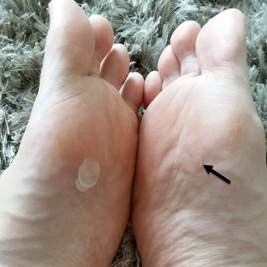 how long does it take for a blister to heal blister healing time