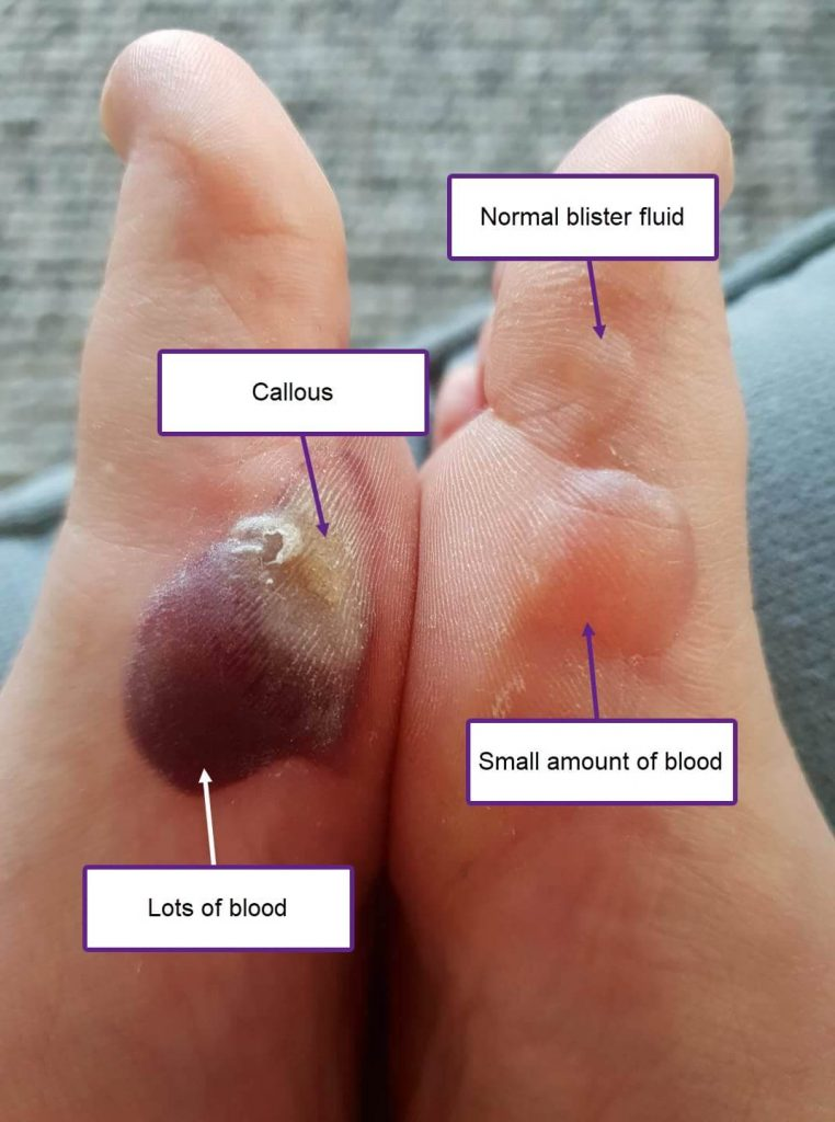 There are three blisters here. One is a typical blister (top right). The other two are blood blisters with varying amounts of blood in them, which effects the colour. here's also a callous involved with one of these blisters that might throw you off, so just thought I'd point that out.