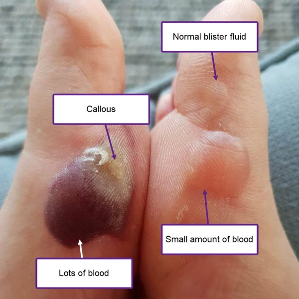 intact blood forefoot edge 1st mpj blood ball of foot forefoot 1st edge blister intact callous fluid thumb