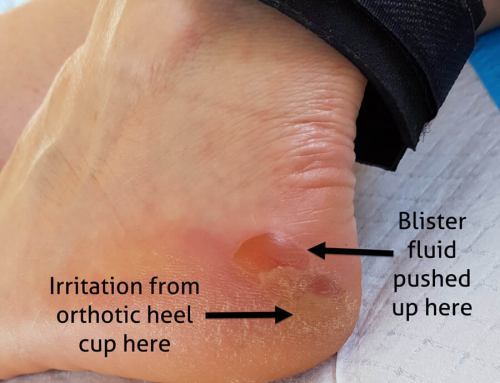 Heel Edge Blisters: They Can Trick You
