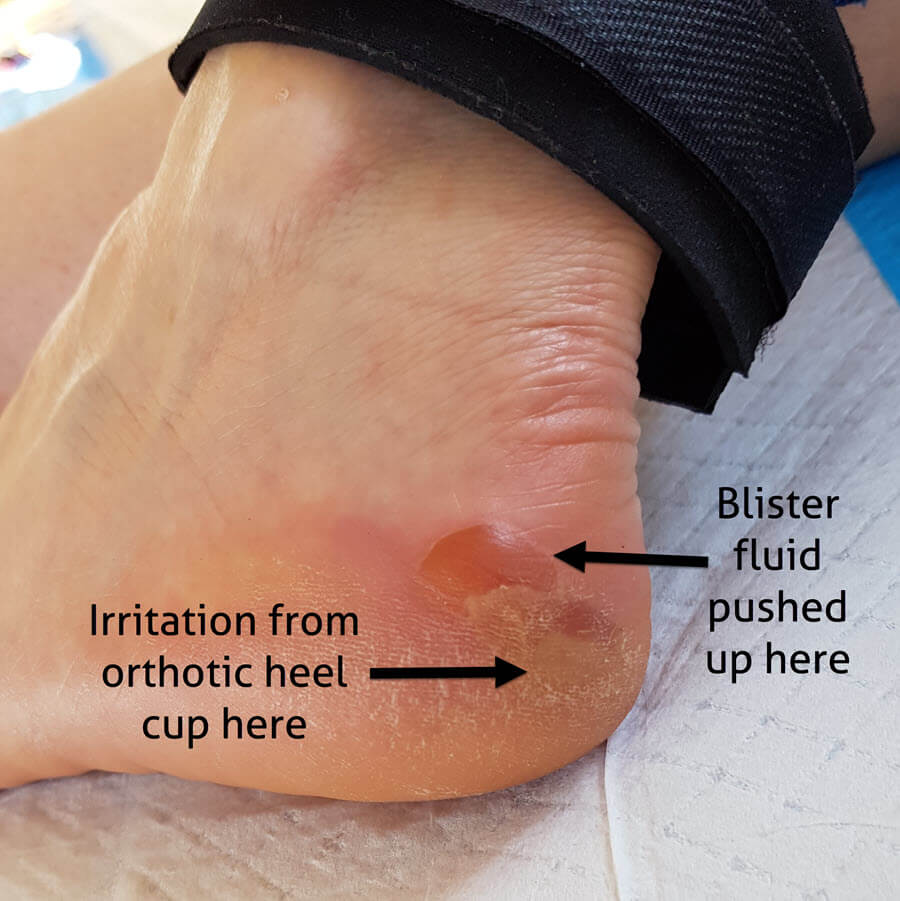 posterior heel edge blister and where the fluid is pushed