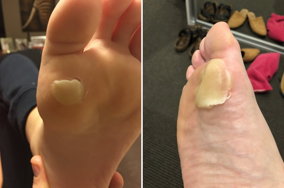 Plantar first metatarsal head blisters