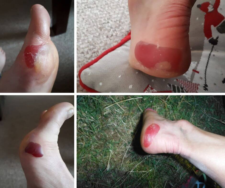 examples of edge blisters