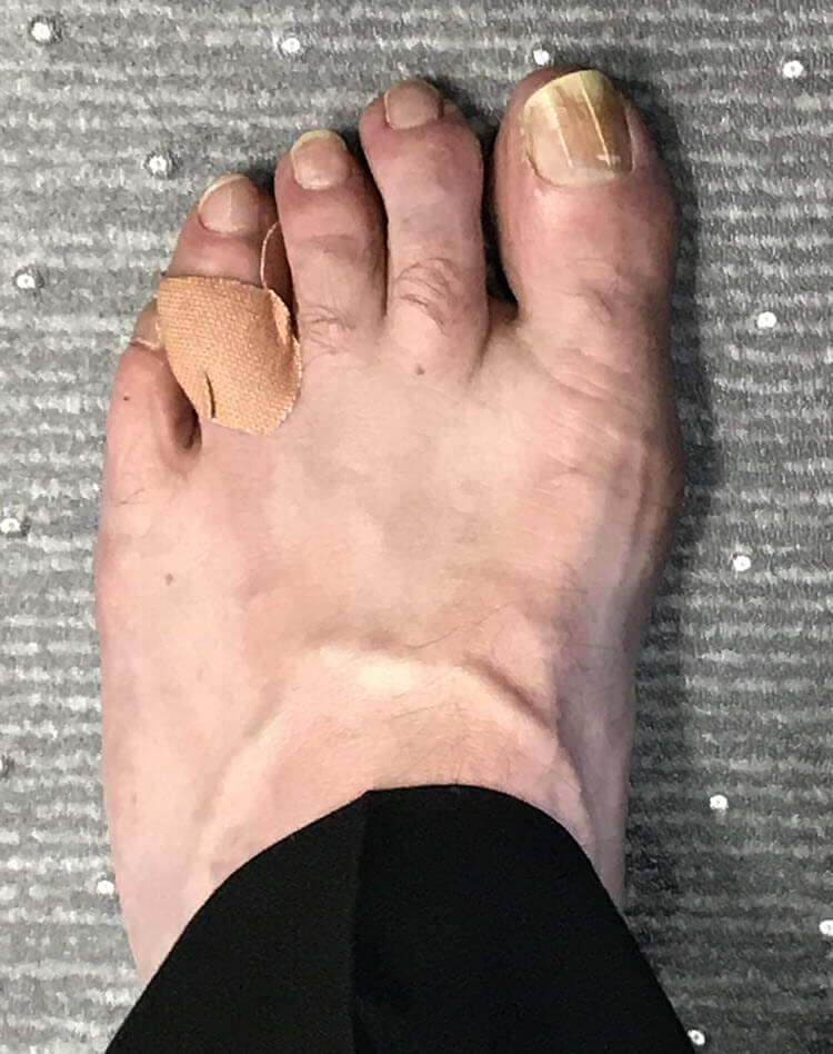 Ashley's infected corn between toes