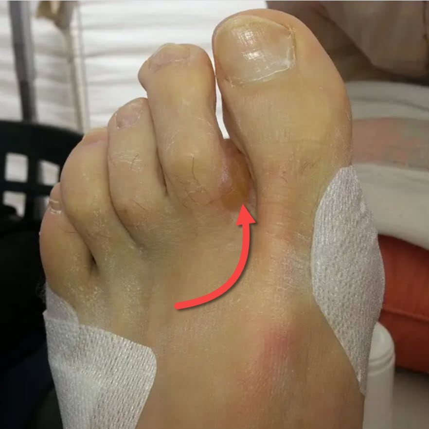 distal forefoot blister appearing between the toes