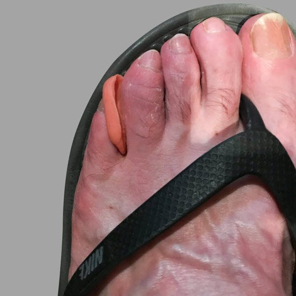 Interdigital Otoform K wedge for painful corn between toes