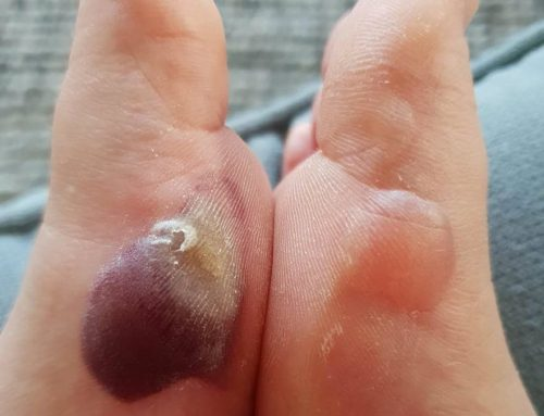 Blister Fluid Colours: What's Inside Your Blister?