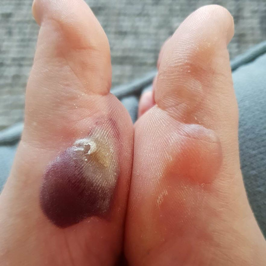 the different colours of blisters - blister fluid