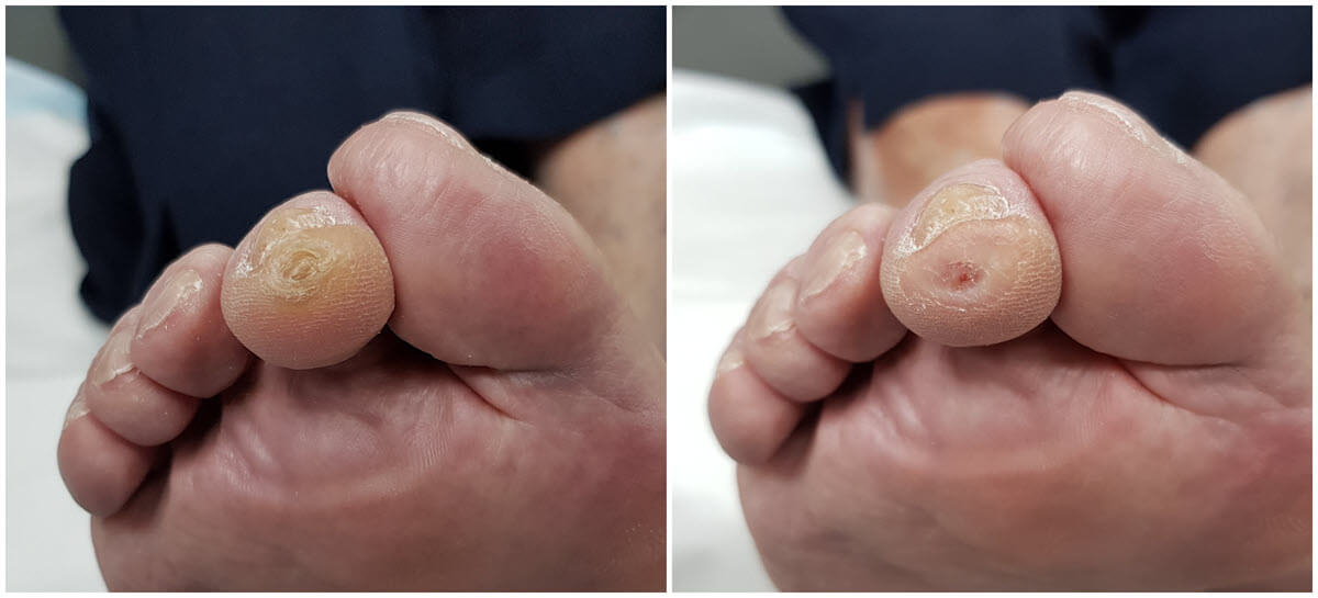 Before & After: This shows a corn on the tip of the second toe with surrounding callous. Nothing is left to the imagination as to where the concentration of pressure is on this toe.