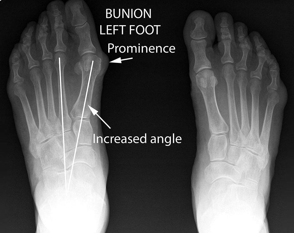 bunion xray bunions and blisters