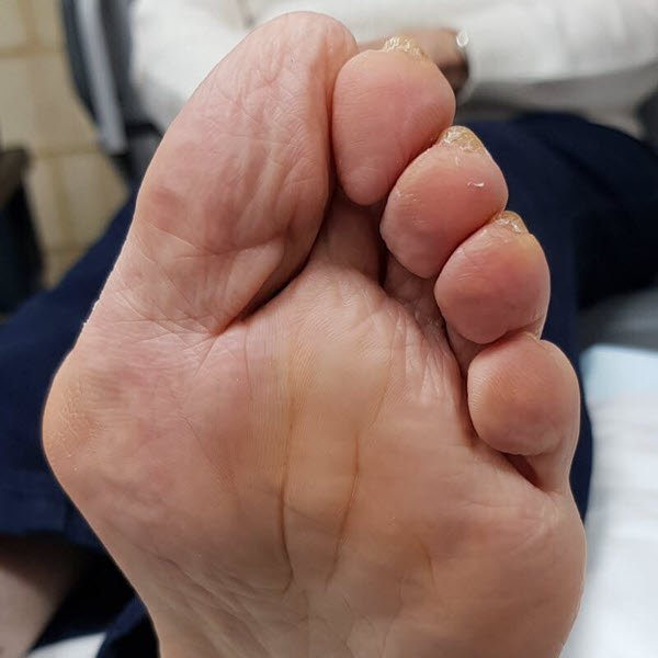 bunions and blisters