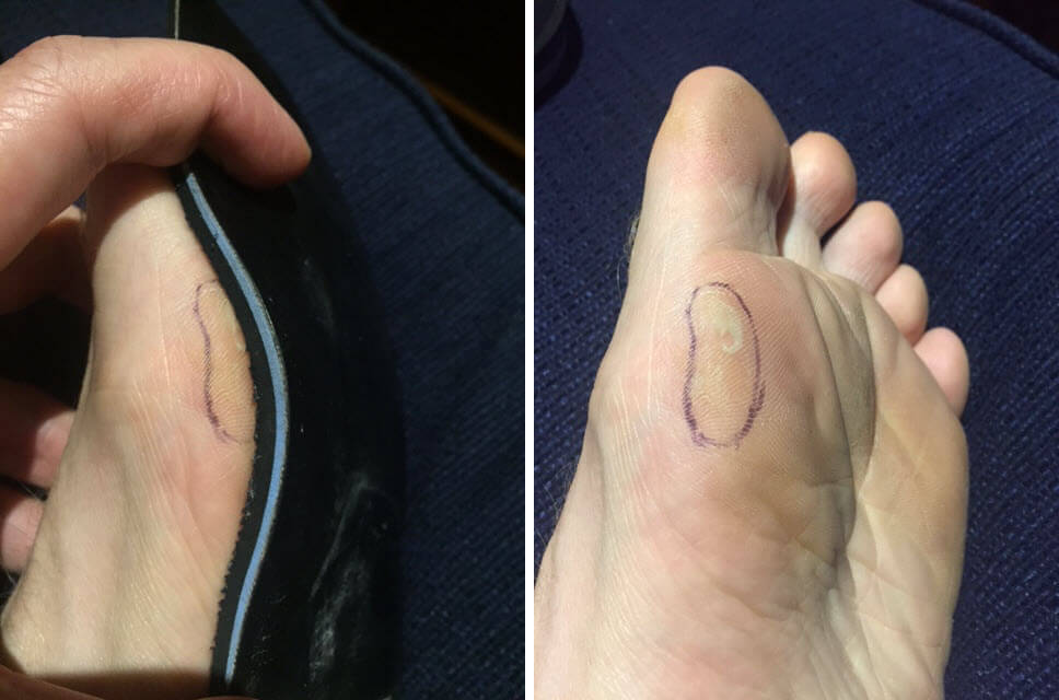 Bunions and blisters - see how this mild bunion bulges over the insole.