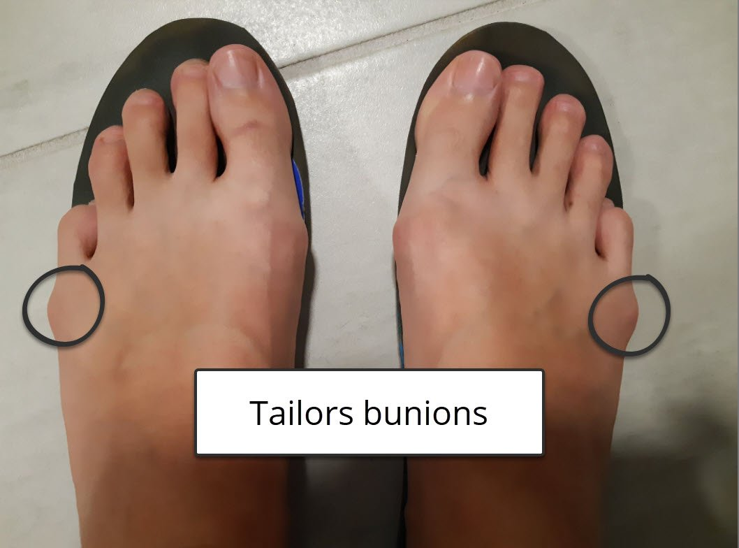 Bunions and blisters - specifically on tailors bunions or bunionettes