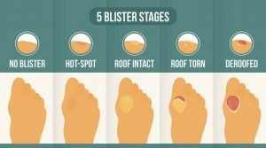 Only use hydrocolloid bandages on the last type of blister - deroofed blisters