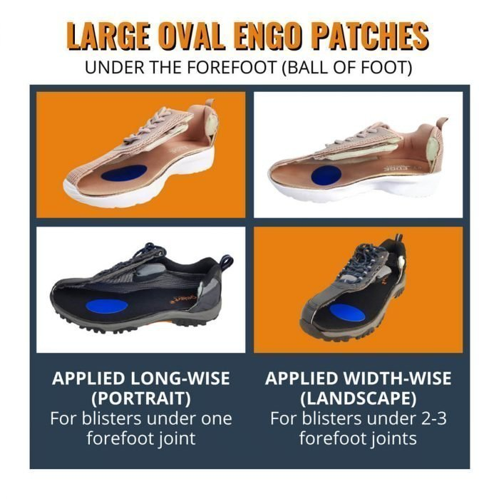 ENGO Blister Patches 4-Pack 6-Pack 30-Pack large oval patches applied to the insole for forefoot blisters