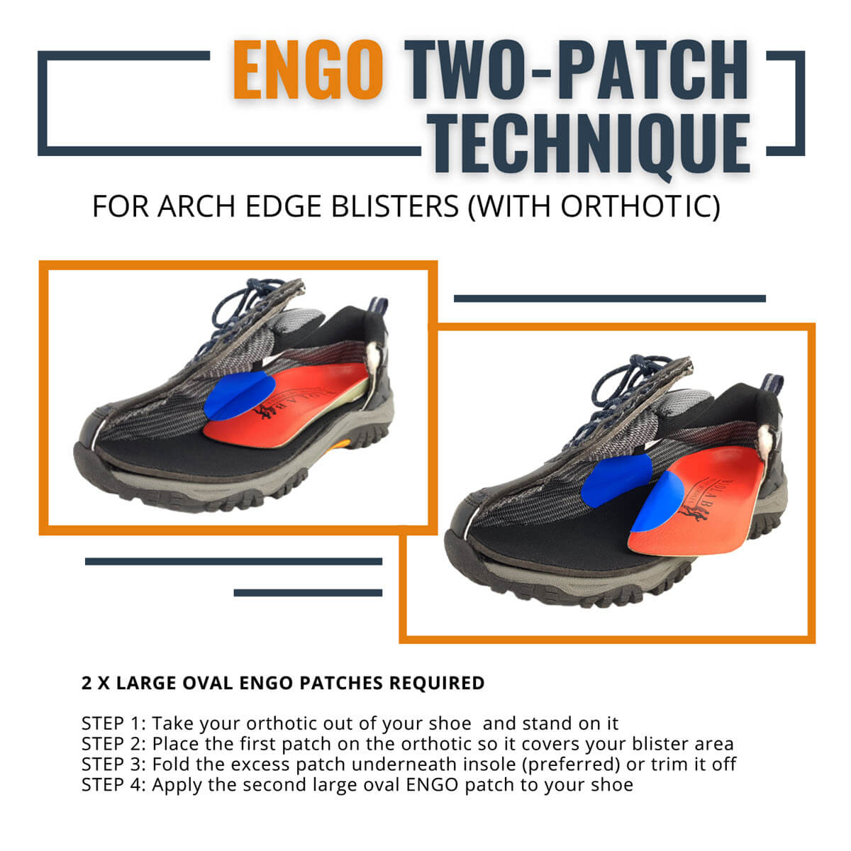 ENGO Blister Patches 4-Pack 6-Pack 30-Pack large oval patches using two patch technique for arch blisters with orthotics