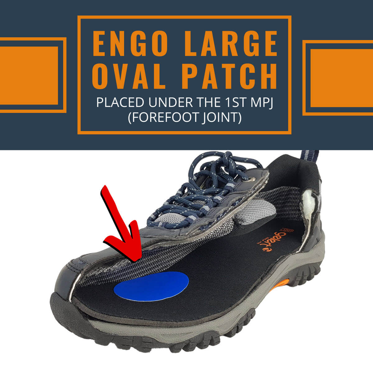 ENGO Blister Patches 4-Pack 6-Pack 30-Pack large oval applied under the first forefoot joint
