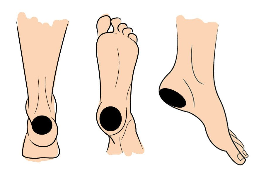 3 types of heel blisters