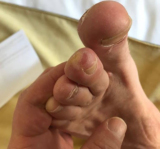 blisters of tips of toes from running