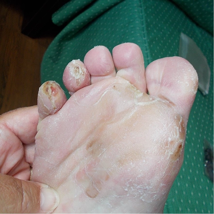 dried pinch blisters toes 4 5 pinch