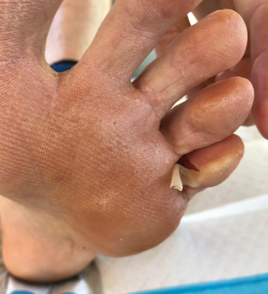 pinch blister pinky toe 5th torn