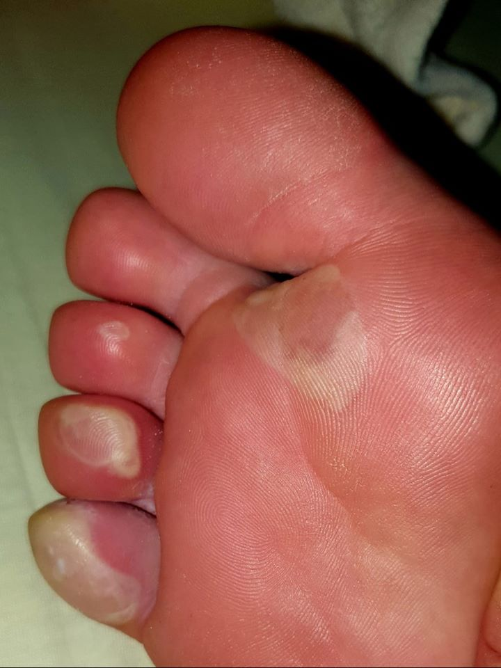 pinch blisters toes 3 4 5 pinch intact ball forefoot proximal