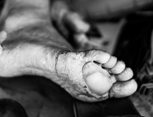 When To Change Your Blister Dressing