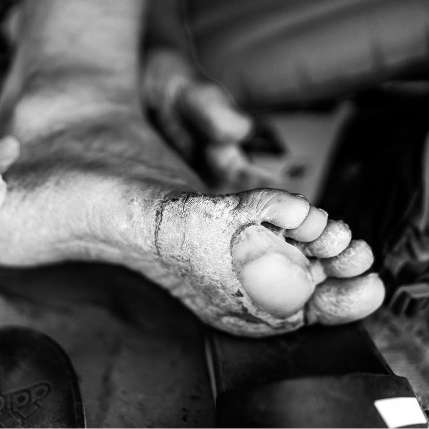 When to change your blister dressing hydrocolloid photo by Ian Corless